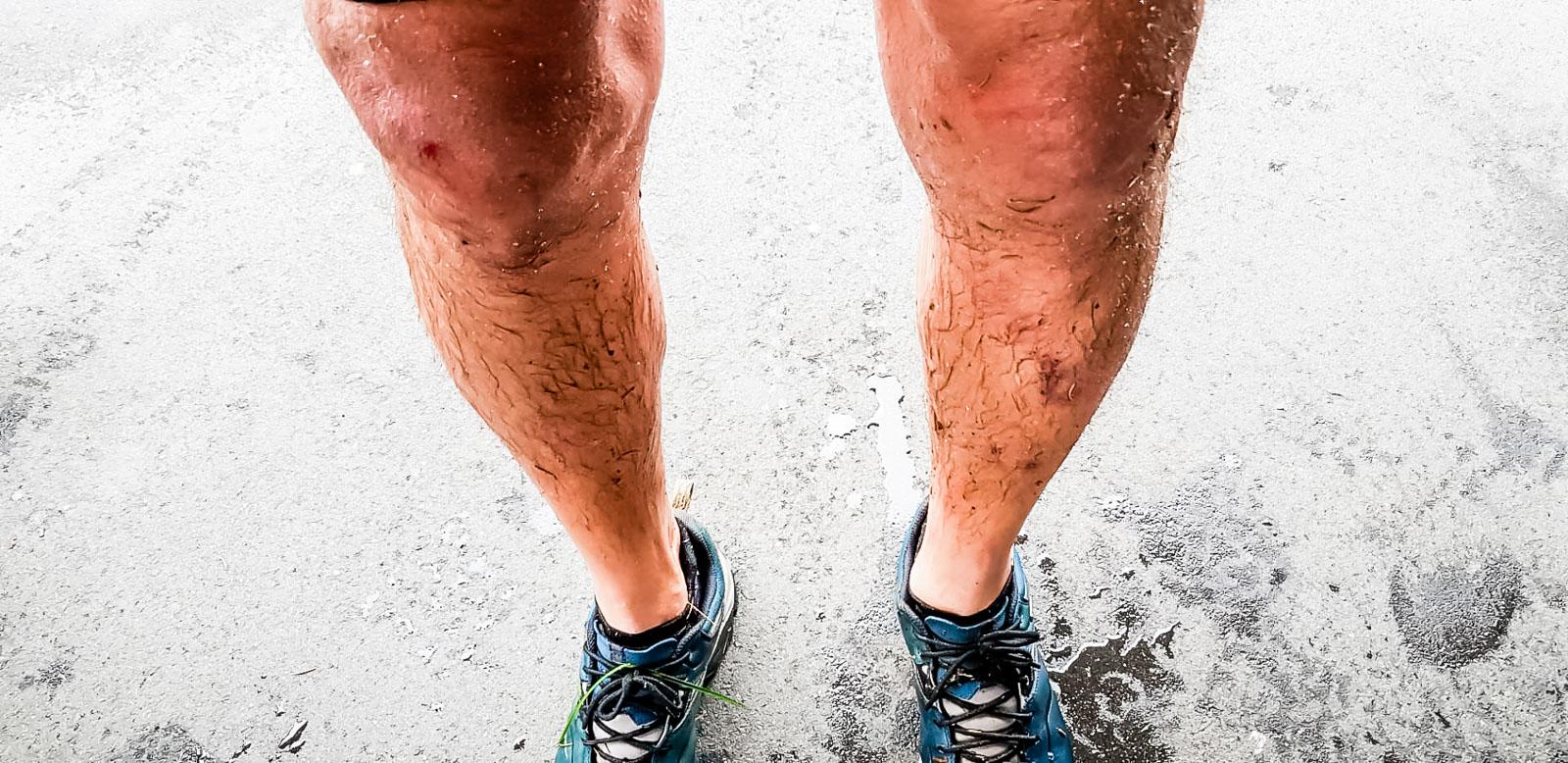 Dreckige Beine